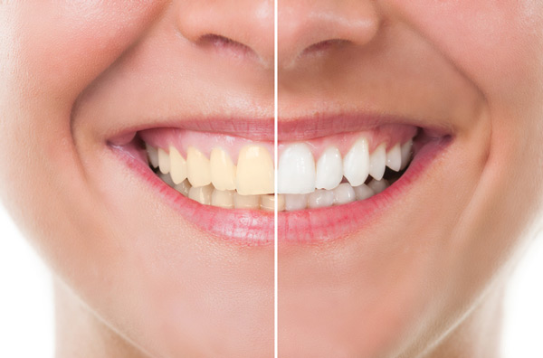 Before and after photo of professional teeth whitening treatment from Dublin Family Dental